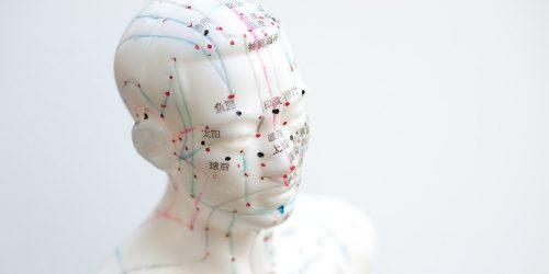 ohrakkupunktur